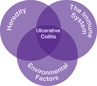causes of ulcerative colitis